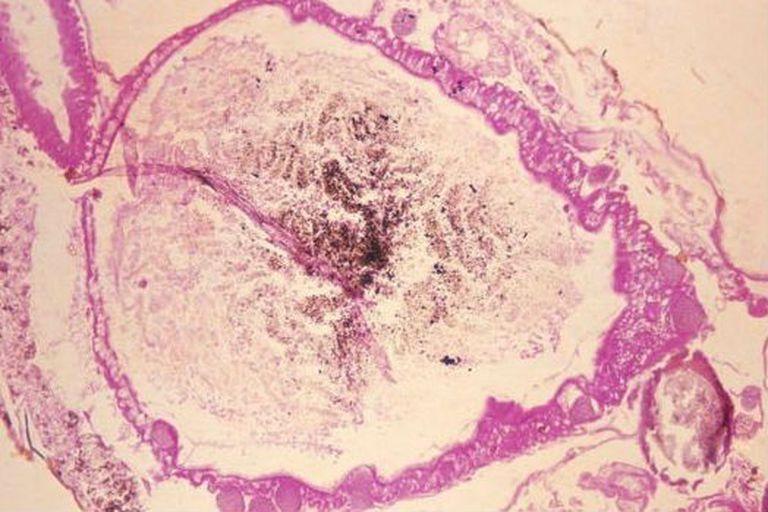 Esta microfotografía muestra el estómago de un mosquito anopheles con el Plasmodium vivax gametes, el parásito que causa la malaria