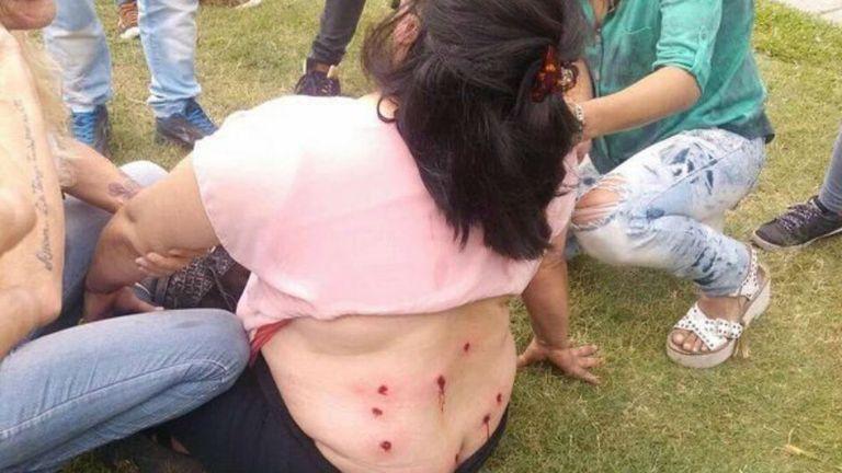 La mujer identificada como Ana María recibió 9 disparos en la espalda (en la foto solo se ven ocho)