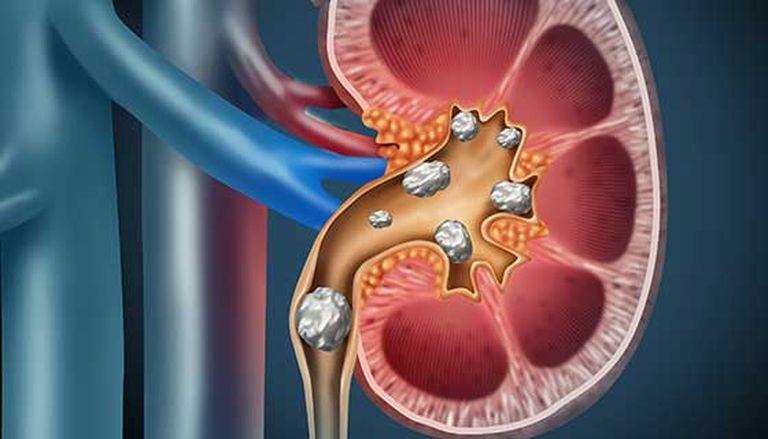 """Los cálculos en el riñón o """"litiasis"""" es una enfermedad más frecuente entre los 30 y los 50 años y el 67% de los pacientes con antecedentes tienden a repetir los episodios"""