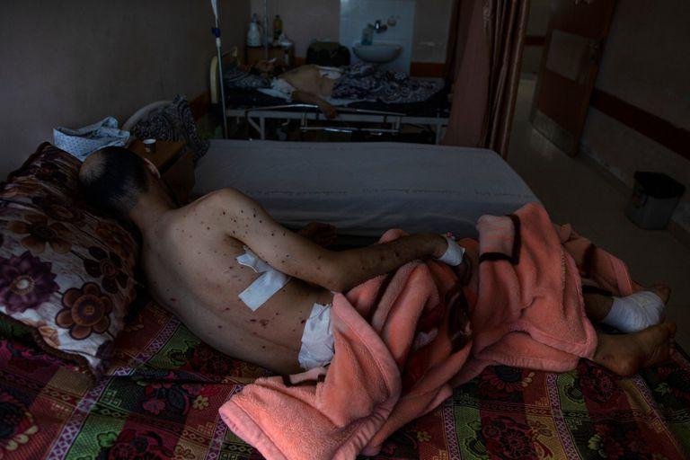 Sharif Al-zaharna, de 33 años, descansa en el hospital Shifa en la ciudad de Gaza, el jueves 13 de mayo de 2021, donde recibe tratamiento por las heridas causadas por un ataque israelí del 10 de mayo que golpeó una casa cercana a su familia en la ciudad de Jabaliya. Hace apenas unas semanas, el débil sistema de atención médica de la Franja de Gaza estaba luchando con un aumento desbocado de casos de coronavirus. Ahora, los médicos de todo el abarrotado enclave costero están tratando de mantenerse al día con una crisis muy diferente: heridas por explosiones y metralla, cortes y amputaciones. (Foto AP / Khalil Hamra)