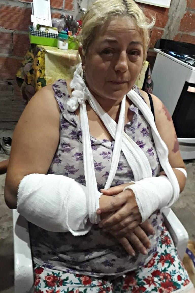 Una mujer sufrió heridas de gravedad por las mordidas del animal