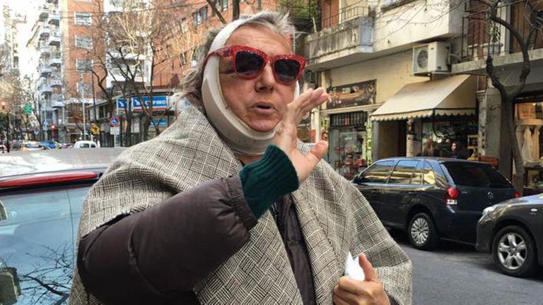 Pepe Cibrián y su chiste tras una cirugía estética