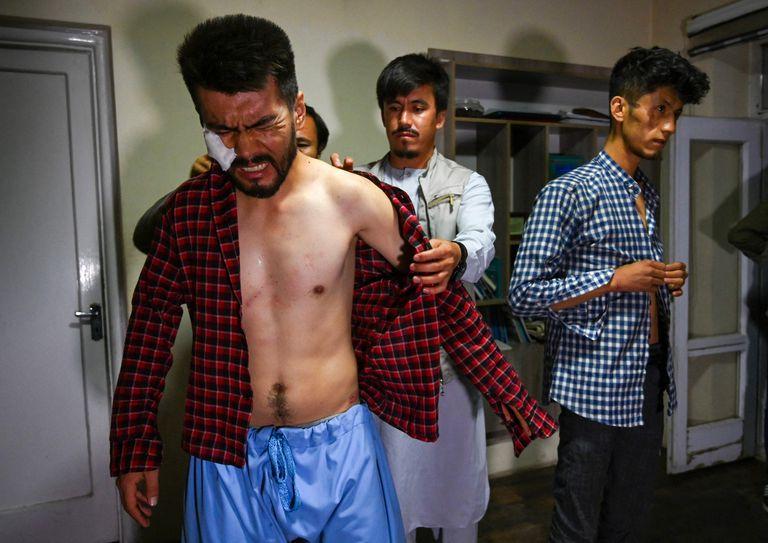 Neamat Naqdi es asistido por sus colegas para vestirse, dolorido por las heridas