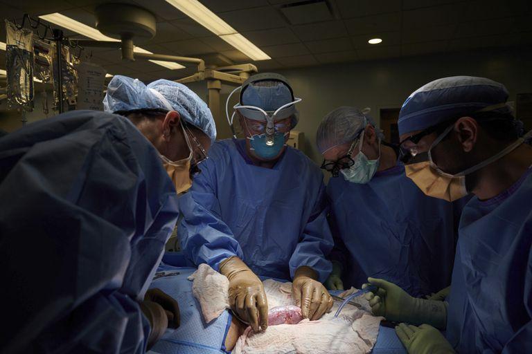 EE.UU.: logran trasplantar con éxito un riñón de cerdo a un cuerpo humano