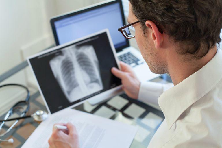 Los casos que representan la principal fuente de infección y transmisión en la población son los pulmonares