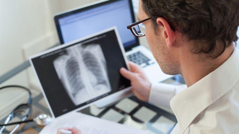 La neumonía es una inflamación pulmonar que afecta principalmente a personas de más de 65 años