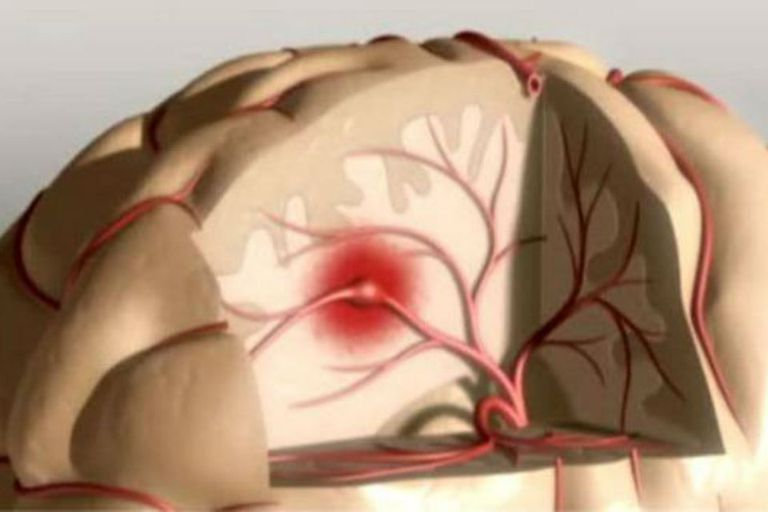 Un ACV puede ser isquémico o hemorrágico