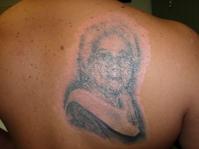 El caso de un hombre con diagnóstico de psoriasis, que se tatuó a su abuela y luego de 4 meses empezó a presentar lesiones en esa zona