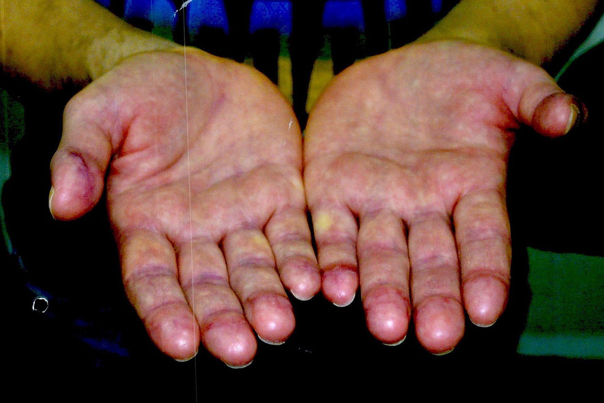 Las manos de Ibar Pérez Corradi, con las yemas de sus dedos melladas para dificultar su identificación mediante huellas dactilares