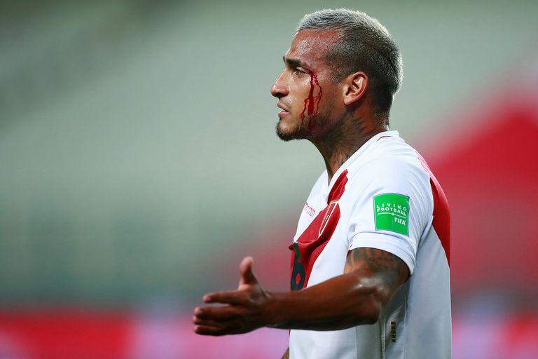 Para Miguel Trauco, cuyo Perú perdió, el partido contra Brasil conllevó sangre, sudor y lágrimas.