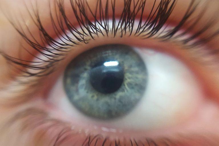 Científicos y oftalmólogos advierten que la infestación con un diminuto parásito podría originar o agravar la sequedad, irritación y prurito ocular que afecta hasta a un 60% de la población
