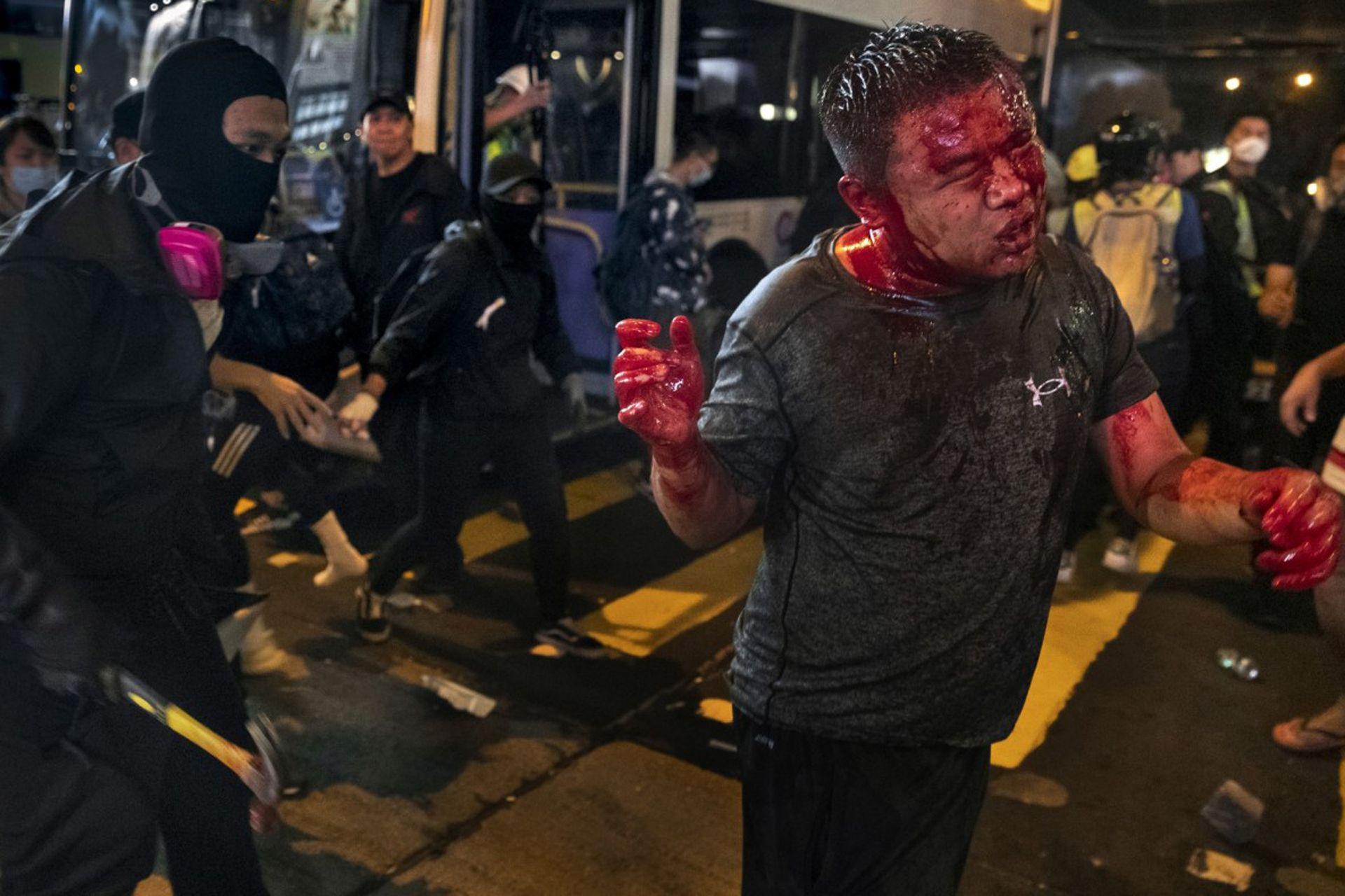 Un manifestante enmascarado y con un martillo en la mano ataca a un hombre sospechoso de ser activista pro Beijing
