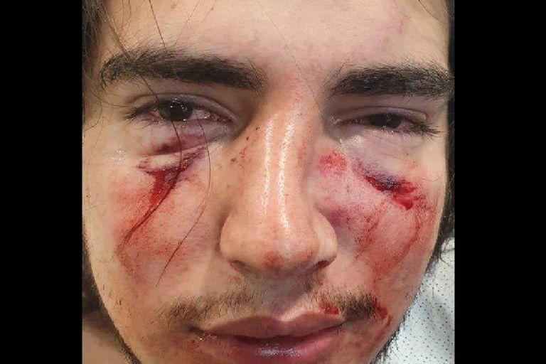 El fiscal espera nuevos informes médicos de las lesiones de Lautaro Insúa.