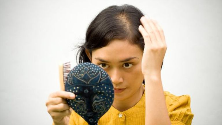 Una menor densidad de pelos en el cuero cabelludo es una señal de que debemos acudir al médico