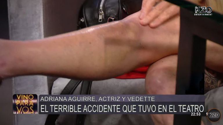 Adriana Aguirre mostró cómo le quedó la pierna a tres meses de su violenta caída en el escenario