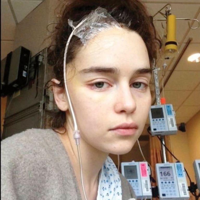 Ella misma compartió fotos de su internación y de su tratamiento en las redes sociales.