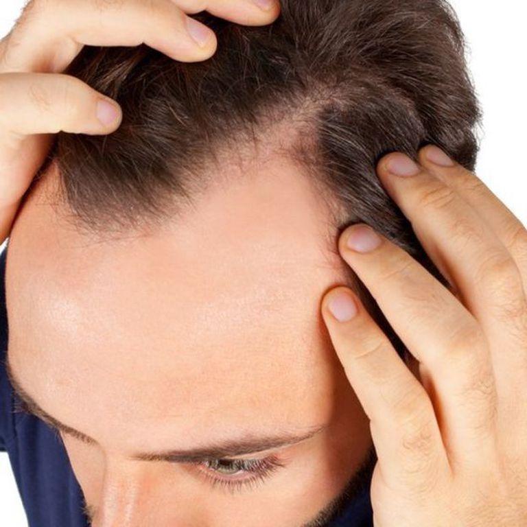 Existen varios factores que pueden afectar el crecimiento del cabello