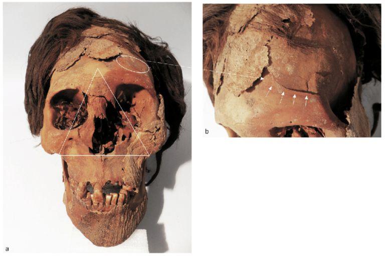 Traumatismo letal en la cara y un posible impacto con un elemento contundente parecido a una piedra