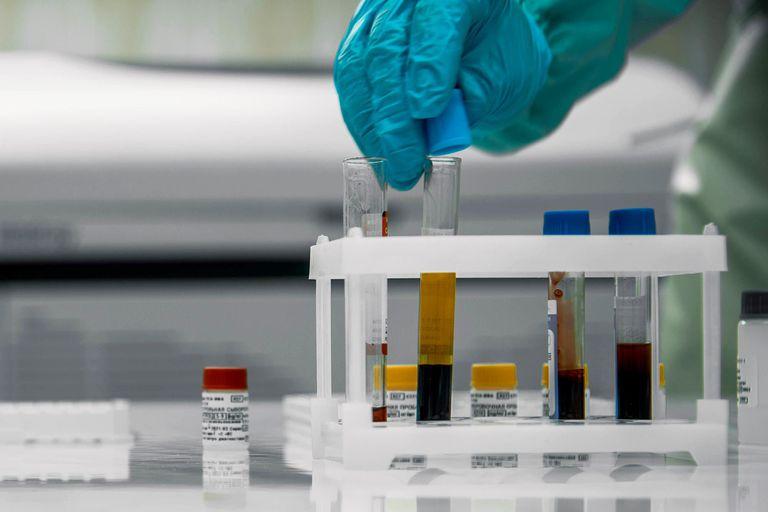 La paciente, de 90 años y sin vacunar, dio positivo a las variantes Alfa y Beta del coronavirus; científicos aseguran que se trata de un caso que necesita ser más investigado